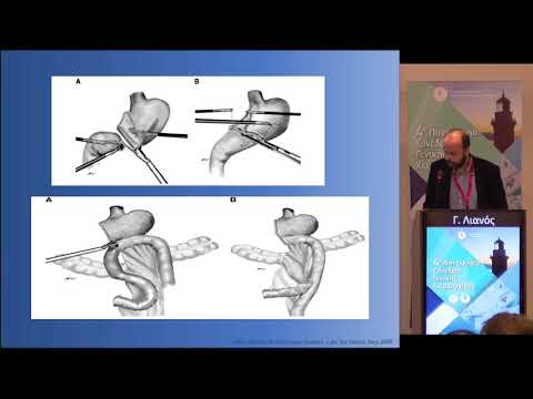 Γ. Λιανός - Νεότερες χειρουργικές προσεγγίσεις (minimally invasive surgery, sentinel lymph node navigation)