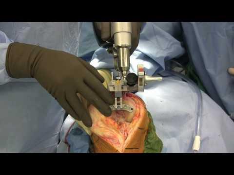 Arthrose der Kniebandage