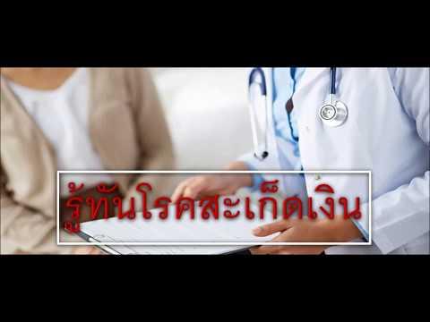 โรคสะเก็ดเงินการฟื้นฟูสมรรถภาพทางการแพทย์