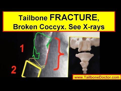 Se lanalisi cattiva di urina a osteochondrosis può essere
