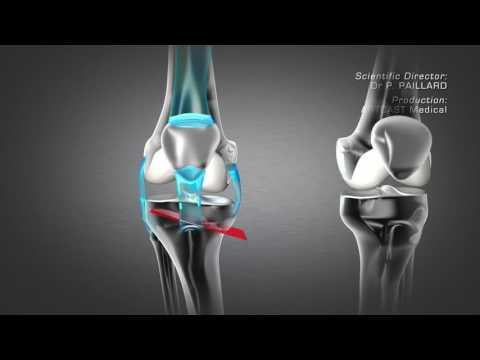 การเจริญเติบโตบนเท้าและเจ็บ