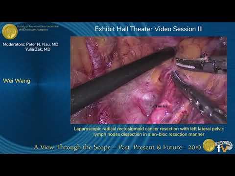 Radykalna resekcja raka zgięcia esiczo-odbytniczego z limfadenektomią węzłów chłonnych miednicznych lewostronnych en bloc metodą laparoskopową