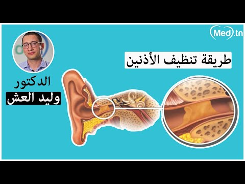 الدكتور وليد العش أخصائي أمراض الأنف والأذن والحنجرة