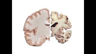 Мозг и Болезнь Альцгеймера (Vsauce на русском)
