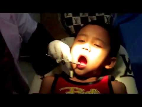 Video Gusi Bengkak - Dokter Gigi