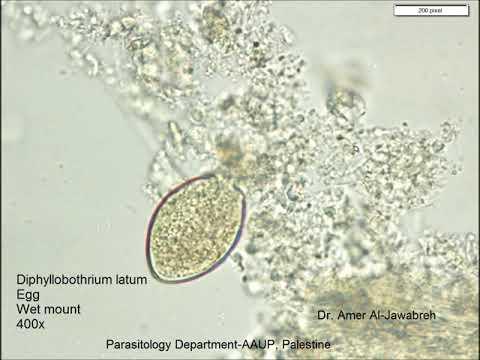 Parazitak az emberi szervezetben