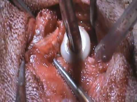 Articolazione del ginocchio artificiale
