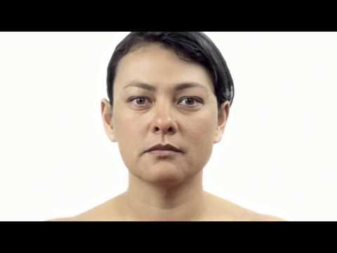 Проблемы с кожей лица пигментные пятна