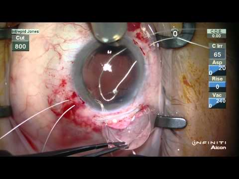 Secondary Scleral Fixated PCIOL With Iridoplasty