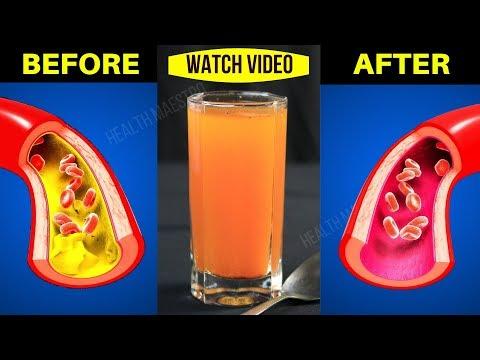 Studim renal hipertensionit
