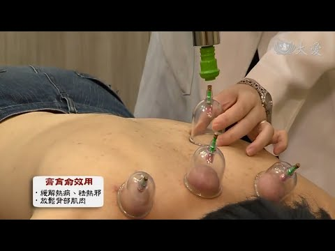 Heat Stroke and Cupping Therapy