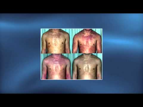Eczema su trattamento di gambe stupnyakh