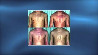 Topical steroid addiction in atopic dermatitis - Video abstract 69201
