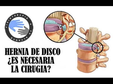 Il sig. di segni di cambiamenti dystrophic di reparto cervicale di una spina dorsale