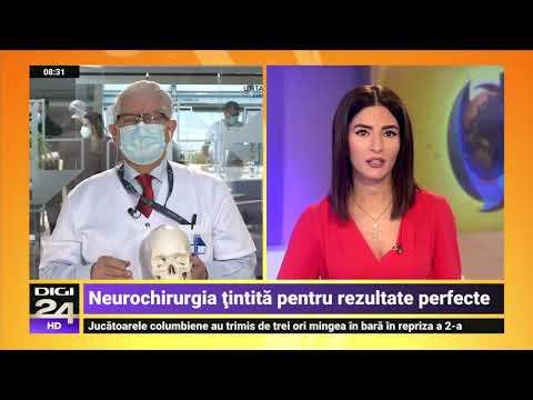 Ce se poate întâmpla în varicoză