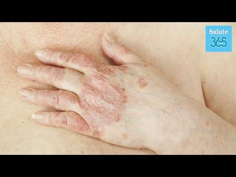 Cibo in 9 mesi a dermatite atopic