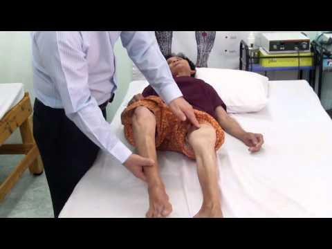 Orthosis กับความผิดปกติ valgus ของเท้า