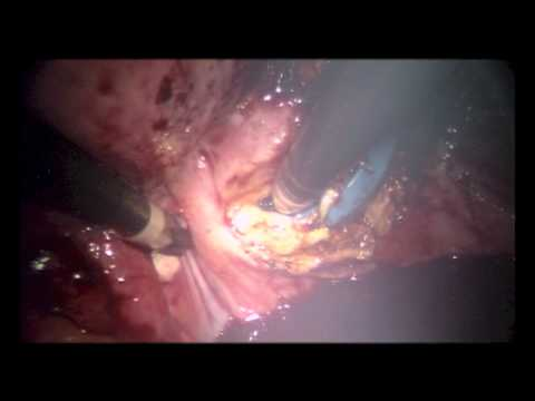 Robotic Single-Site Total Laparoscopic Hysterectomy