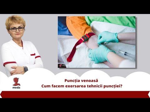 Recenzii dupa variante varicose vene