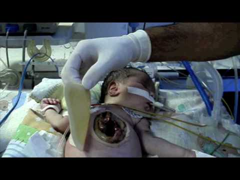 OMPHALOCELE By Dr Abello.mov