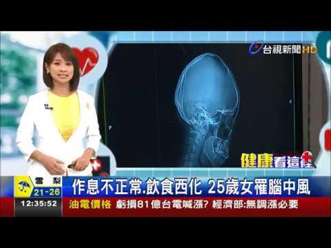 作息不正常 飲食西化25歲女罹腦中風