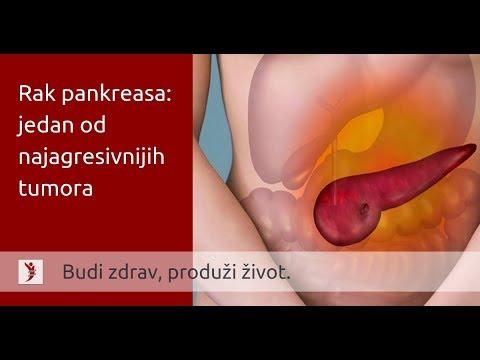 Cancer pulmonar benigno