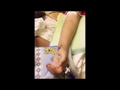 O tratamento de distonia vascular do tipo hipertensiva