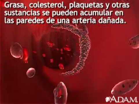 Enfermedad encefalopatía hipertensiva