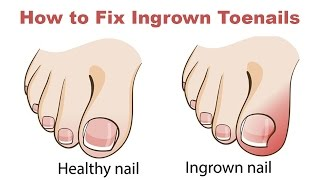 Ingrown toe nails are a pain!
