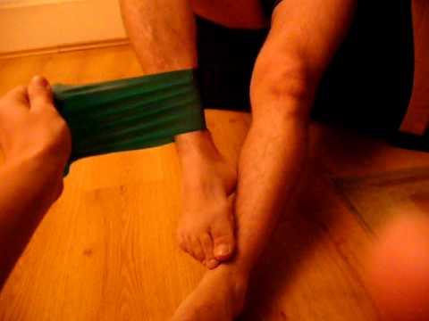 Koślawe zniekształcenie pierwszych palców obu stóp