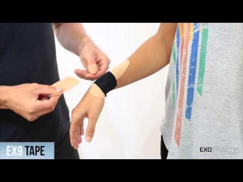 Hogyan lehet kezelni a csukló izületi gyulladását