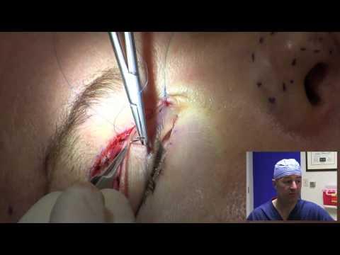 การผ่าตัดเพื่อเพิ่มขนาดอวัยวะเพศ