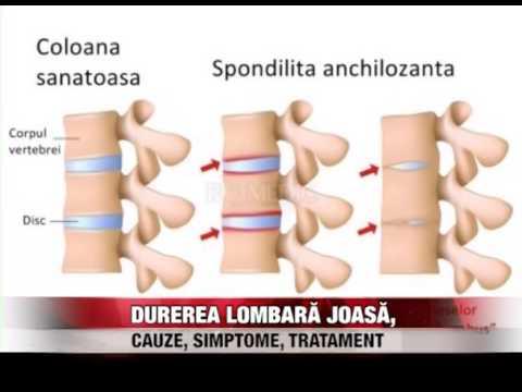 Articulația încheieturii mâinii de durere
