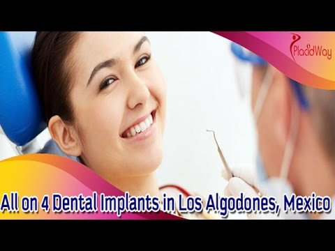 All-on-4 Dental Implants - Mouth Makeover in Los Algodones, Mexico