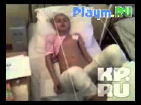 Девочка загорелась при удалении аппендицита