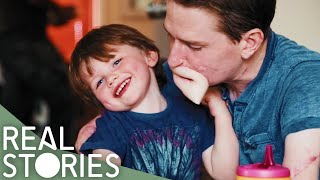 Loss of Limbs and Lips Leaves Son Unable to Kiss Dad – Real Stories