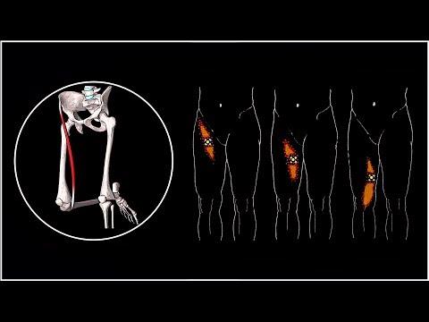 Острая боль в плече мышца или сустав