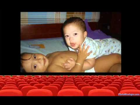 Ver vídeoSíndrome de Down: Un cromosoma extraordinario