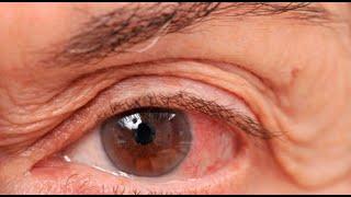 Doctor en Casa: Aprende todo sobre el glaucoma