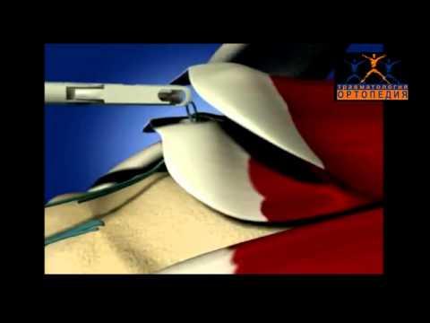 Разрыв сухожилий ротаторной (вращательной) манжеты плеча: артроскопический шов