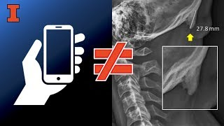 "Thumbnail of Is cellphone use causing people to grow horns?  Illinois prof says ""No"" video"