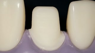 #8 tooth prep
