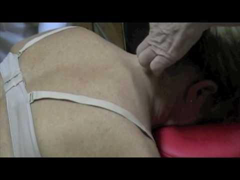 Come uccidere un dolore acuto da osteochondrosis
