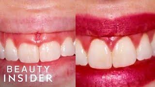 Gum Contouring Can Transform Your Smile