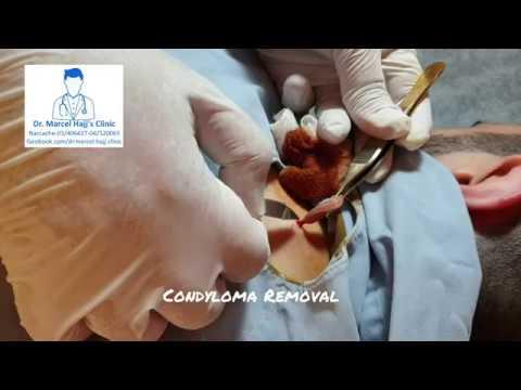 Laryngeal papilloma and cidofovir