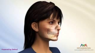 A Importância da Fonoaudiologia na Cirurgia Ortognática