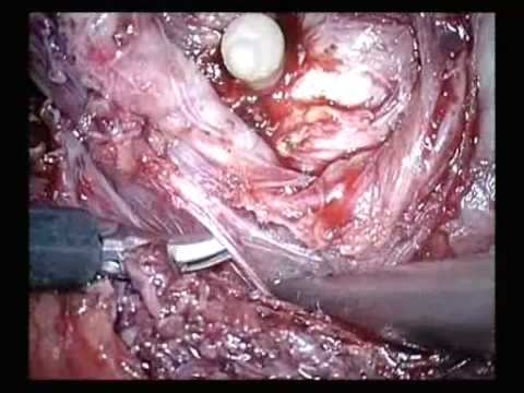 Intrafascial Nerve Sparing Endoscopic Extraperitoneal Radical Prostatectomy