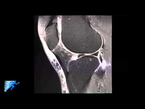 How to Read Knee MRI of Meniscal Root Tear
