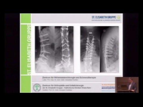 Salbe zur Behandlung von Arthrose des Schultergelenks