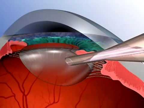 London - OC | Cataract Surgery